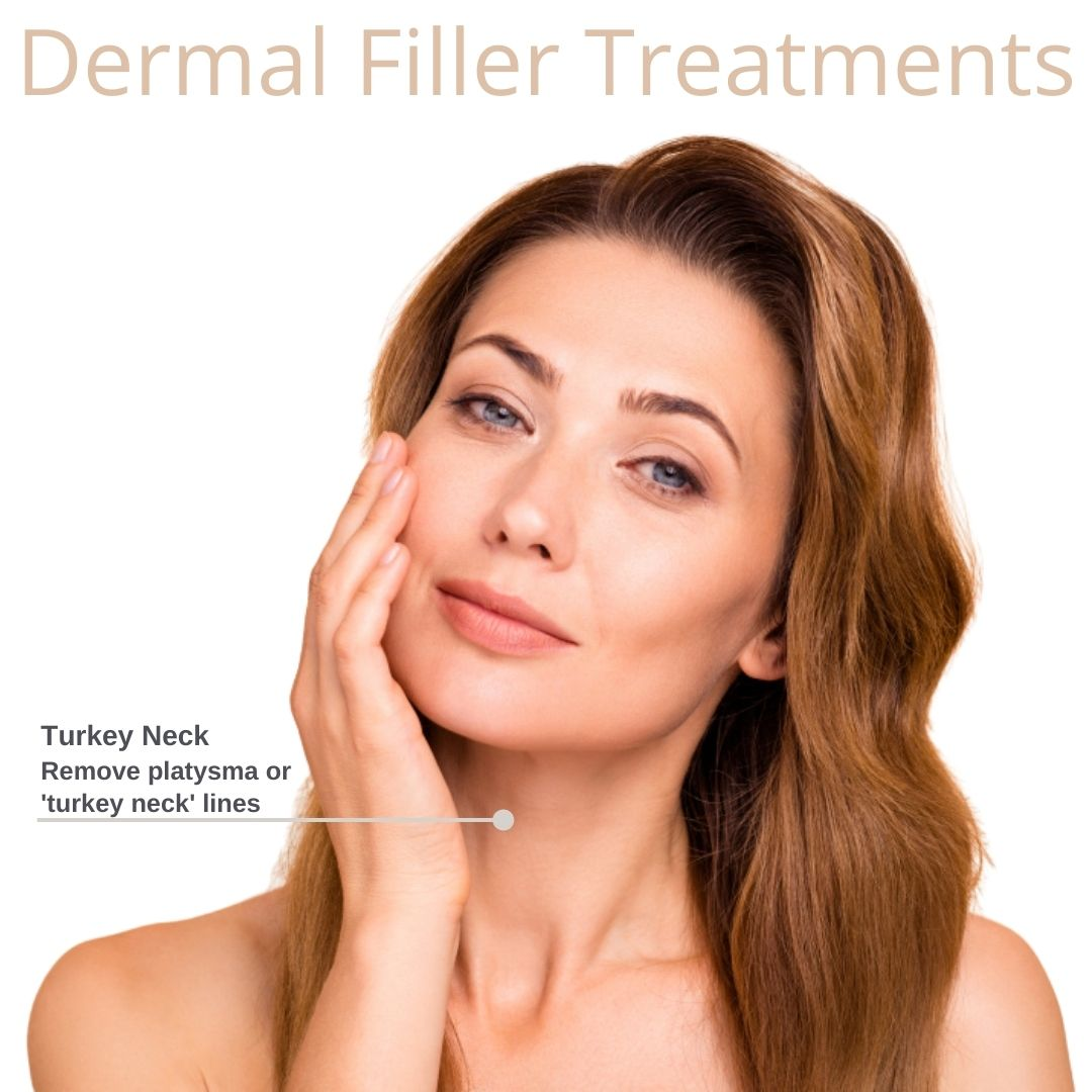 Turkey Neck Pointed out only on Dermal Filler Treatment facial map by Medical Injectables Wollongong and Orange